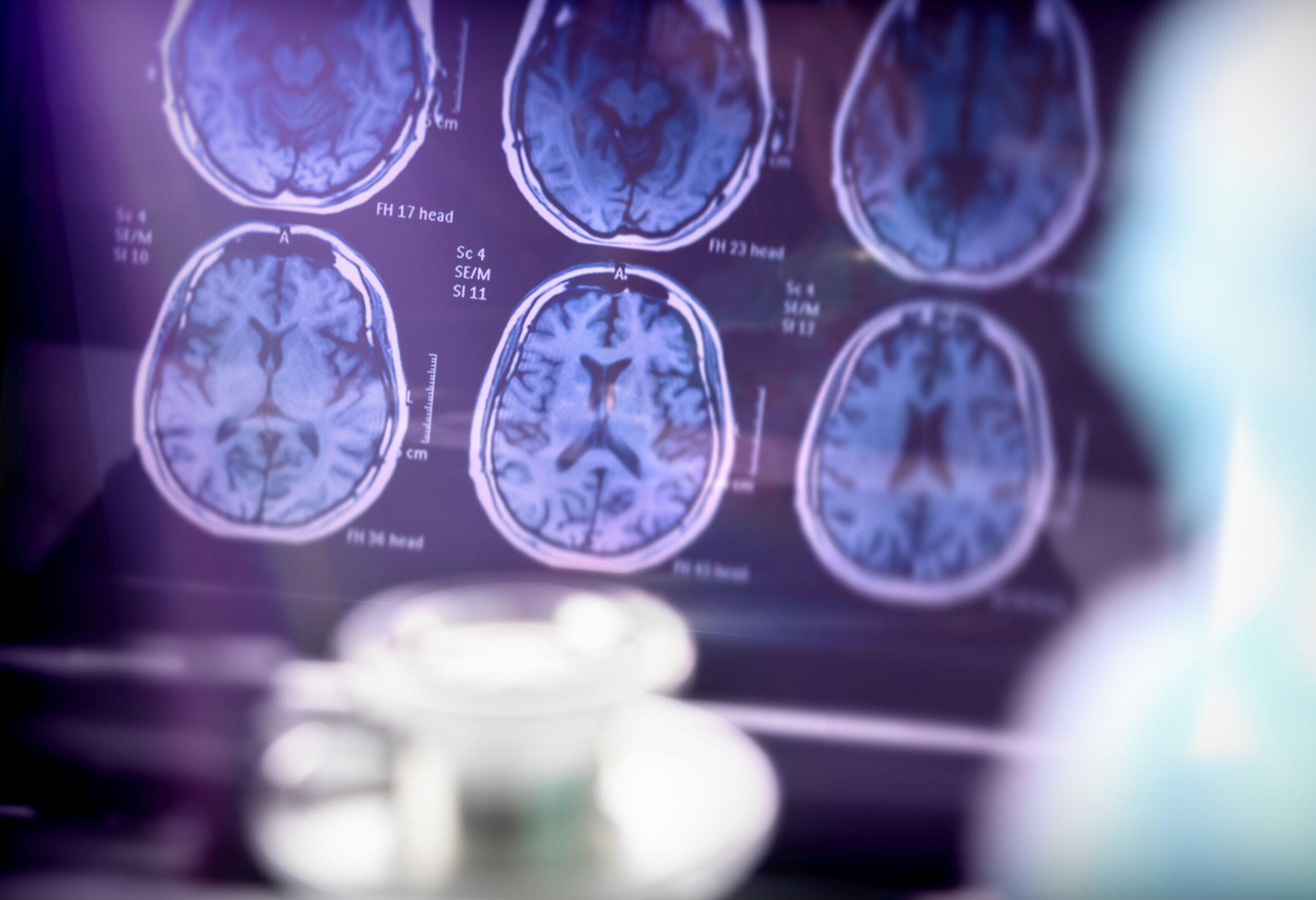 נמצא מנגנון ביולוגי במוח שגורם לנו לזכור טוב יותר חוויות ראשוניות